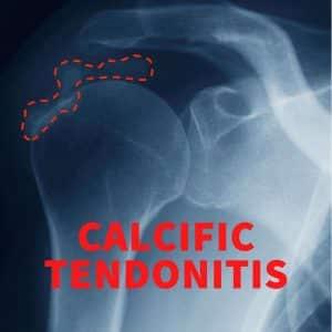 Calcific Tendonitis