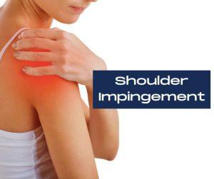 What is shoulder impingement